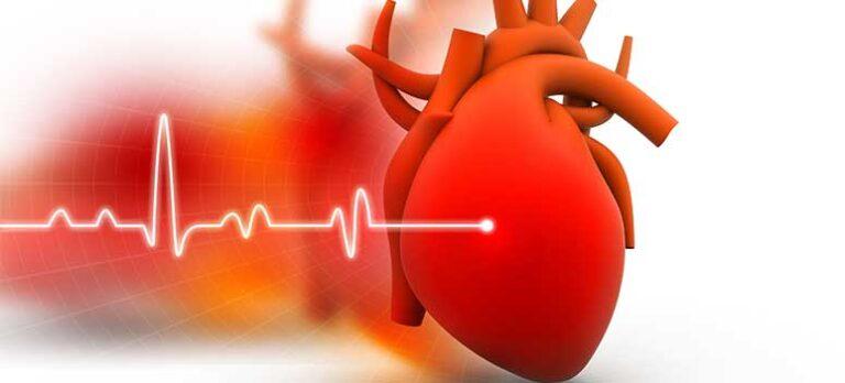 Hjerteflimmer