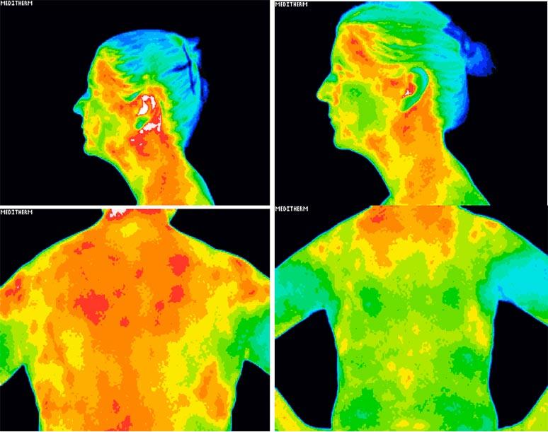 Medicinsk Thermografi