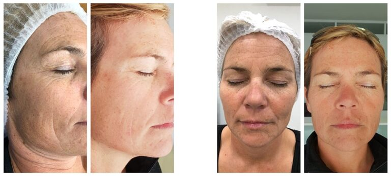 PhiLings-behandlinger som forandrer din hud